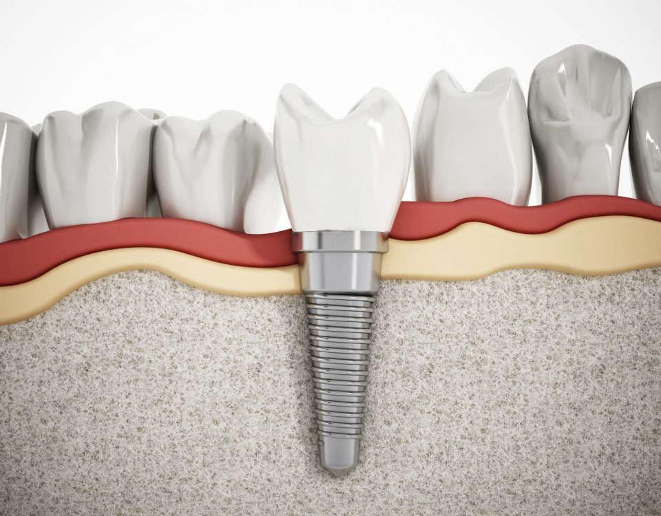 Implanty zębów koszt i rodzaje tytanowe cyrkonowe